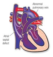 patent ductus arteriosus RV overtakes systemic output CYANOTIC