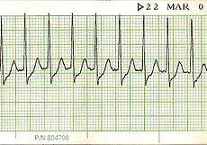 tachycardia --> SVT bradycardia long QT syndrome
