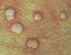 the flat wart - common sites include the chin/face, dorsum of hands, and legs - appears flesh-colored with smooth papules and a flat surface