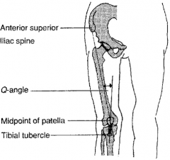 F (not M) have > incidence of patellofemoral instability 2^ to their >d Q-ang=(quad ang) ang formed by the intersection of a line @ ASIS to the patella & from the patella to the tibial tubercle, Nl Q-ang M=14 deg/F= 18 > angle means that there is ...