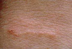 - treat all close contacts of the patient simultaneously (even in asymptomatic) with permethrin 5% cream - the patient is no longer contagious after one treatment, although pruritus may continue for a few weeks as dead mites are shed from the ski...