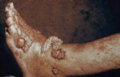 פטרת תת עורית. נקרא גם דרמטיטיס וורוקוזי או כרומומיקוזיס. מחלה כרונית על ידי פטריות יוצרות פיגמנט - צמיחה אקסופיטית מחוץ לנגע הדקירה. ...