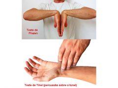 SINAL DE TINEL: percursão do punho= parestesia e dor MANOBRA DE PHALEN: hiperflexão dos punhospor 60seg