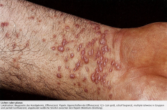 - Beugeseitige Handgelenke, unterer Rücken,  Kniebeugen und Unterschenkel - Schleimhäute: Z.B. Mundschleimhaut bei etwa der Hälfte der Patienten befallen  - Genitoanalregion