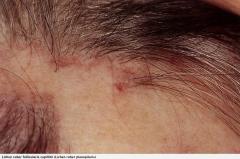 - Befall der Kopfhaut mit einer vernarbenden Alopezie- Die erhaltenen Haarfollikel zeigen perifollikulär ein bandförmiges lymphohistiozytäres Infiltrat  - Direkte Immunfluoreszenz: Fluoreszierende Kolloidkörperchen im Bereich entzündeter Haut