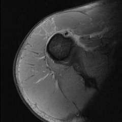 wtlifter feels a pop in his ant shoulder while doing a bench press exer. Which nerve innervates the muscle that is disrupted as seen on his MRI (Fig A)? 1-Axillary  2-Musculocutaneous; 3-Upper & lower subscapularis  4-Median; 5-Lat & Medpectoral...