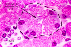 Identify centroacinar cell.