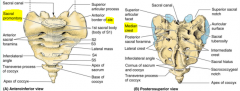 -Inwardly projecting anterior part of the body of 1st sacral vertebra -Fusion of the spinous process of the sacral vertebral segments -Fused transverse and costal processes