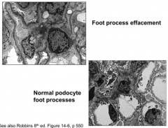 * LM: Glomeruli, interstitium, and tubules are NORMAL (hence minimal change)