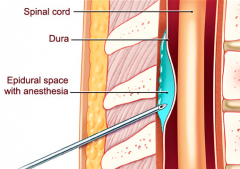 -Epidural space: between periosteum and dura mater
