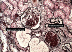 * LM: Focal and segmental glomerular sclerosis* w/ capillary collapse, hyaline and lipid deposition, and adhesion to Bowman's capsule