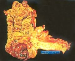 Pathology Chapter 17 review questions Gastrointestinal Tract