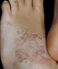 Dermatology Flashcards - Cram com